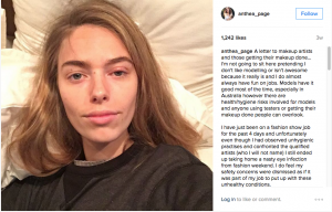Australian model Anthea Page gets eye infection requiring medication from a dirty makeup brush. News follows other cases of dirty makeup brushes causing breakouts and infections, including the story of an Australian mother who was paralyzed by a dirty makeup brush.